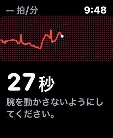 ecgApp5